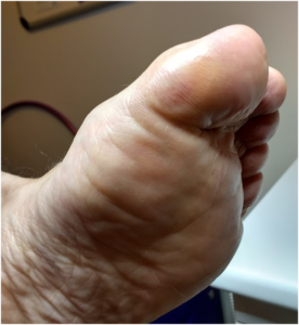 Athletes foot resolved