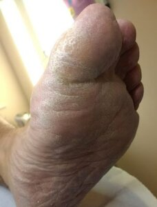 A foot with a fungal infection