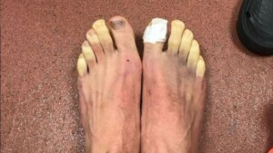 Toes with chilblains