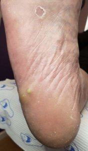 Foot with unknown problem