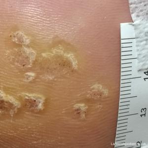 Verrucas before treatment