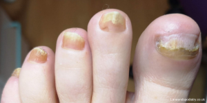 Toes with nail fungus