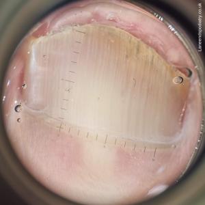 Nail fungus viewed through a dermatoscope