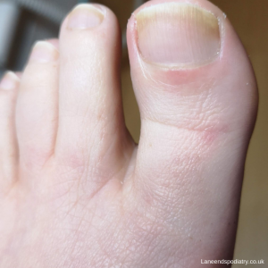 A healthy toe after nail fungus treatment