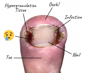 A graphic showing an ingrown toe nail