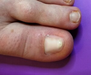 nail after reconstruction