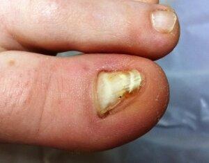 nail before reconstruction