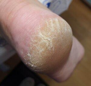 Potty Purple Podiatrist Warrington - cracked heel