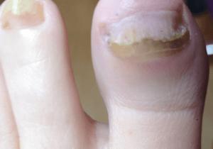 A big toe with nail fungus