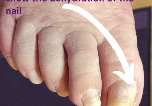 A dehydrated toe nail