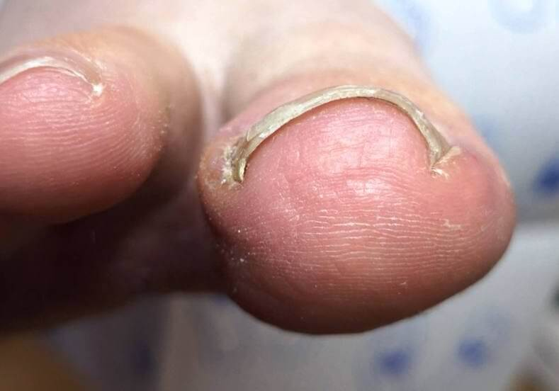 A curved or involuted toenail