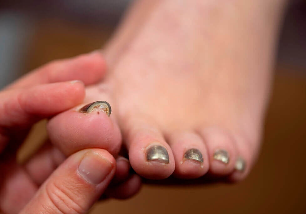 A patient with toe nail problems