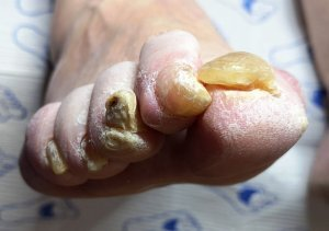 A podiatry patient with thick, bendy problem toenails.